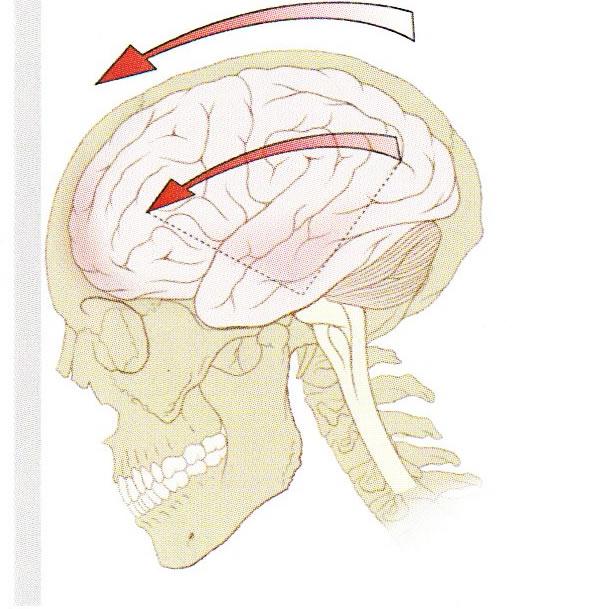Countywide Concussion Care Update – Ransom Everglades Dell & Cannon April, 2011