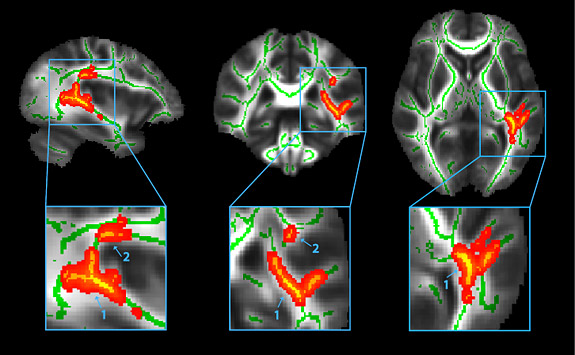 Concussion research aims to help athletes, study of the brain  – Princeton University