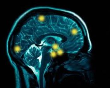 New Study Links Athletes' Repetitive Head Injuries to Degenerative Brain Disease